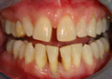 Before Dental Crowns in Costa Rica